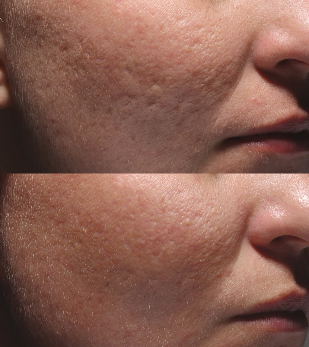 Acne_Patient_3_before_after_leftside