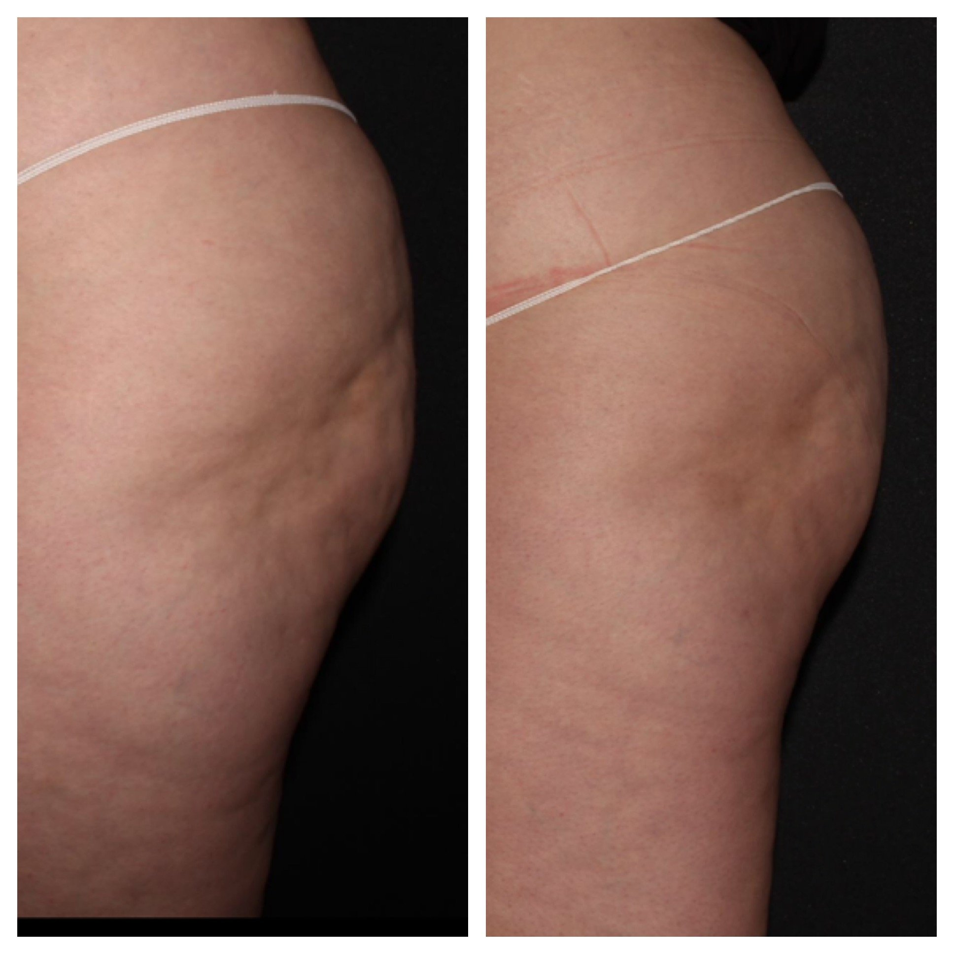 Cellulite Treatment and Sculptra
