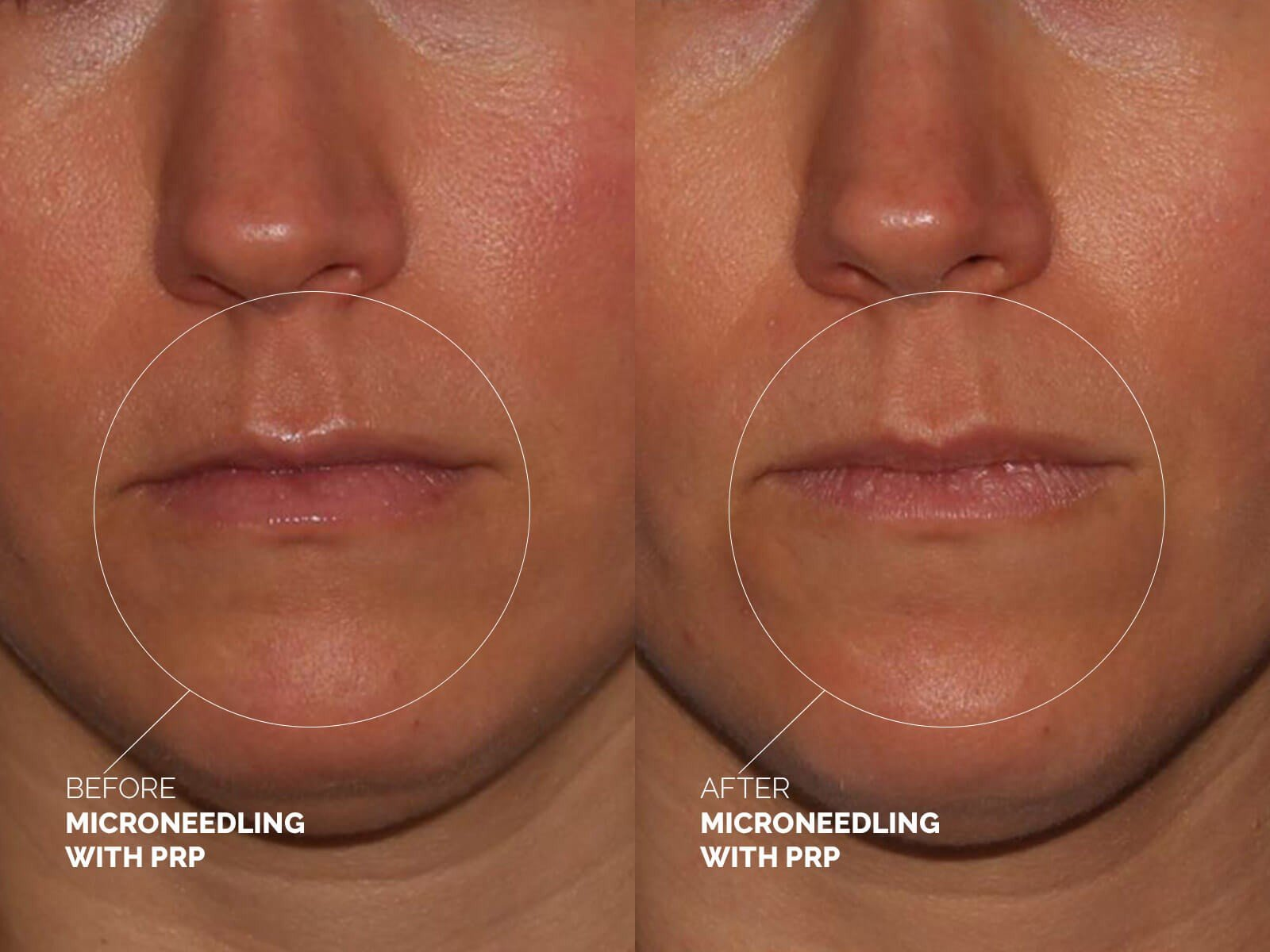 microneedling-prp-before-after | Dr Erickson Dermatology