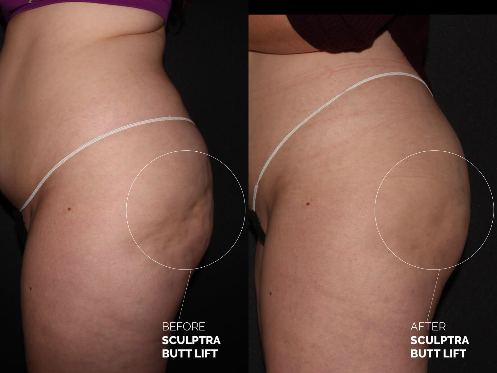 sculptra-butt-lift-before-after