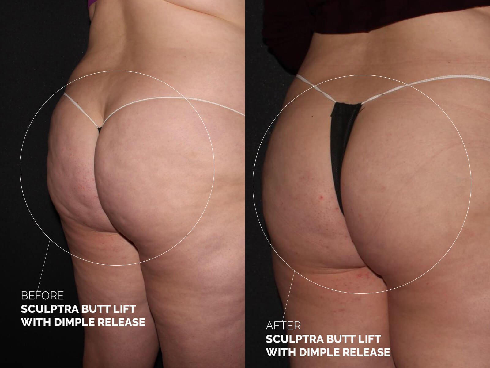 sculptra-butt-lift-dimple-release-before-after