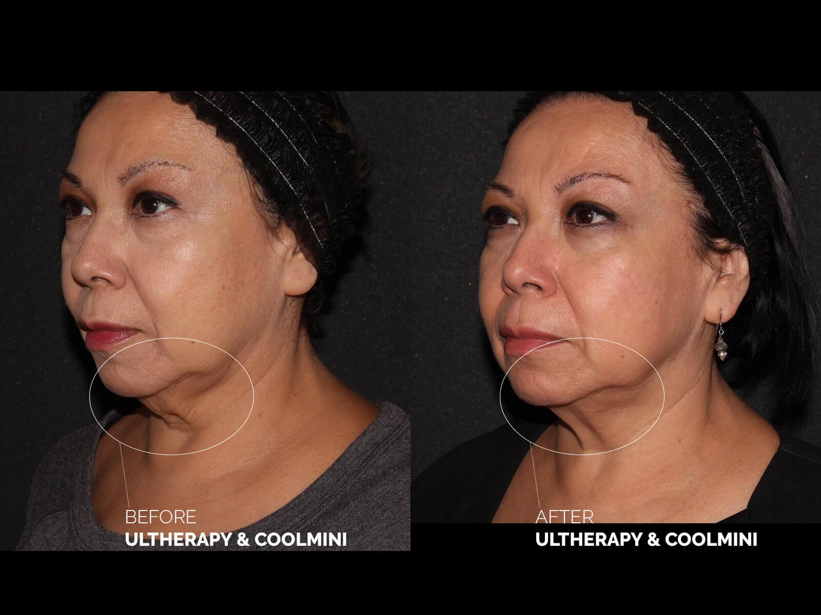 ultherapy-coolmini-before-after