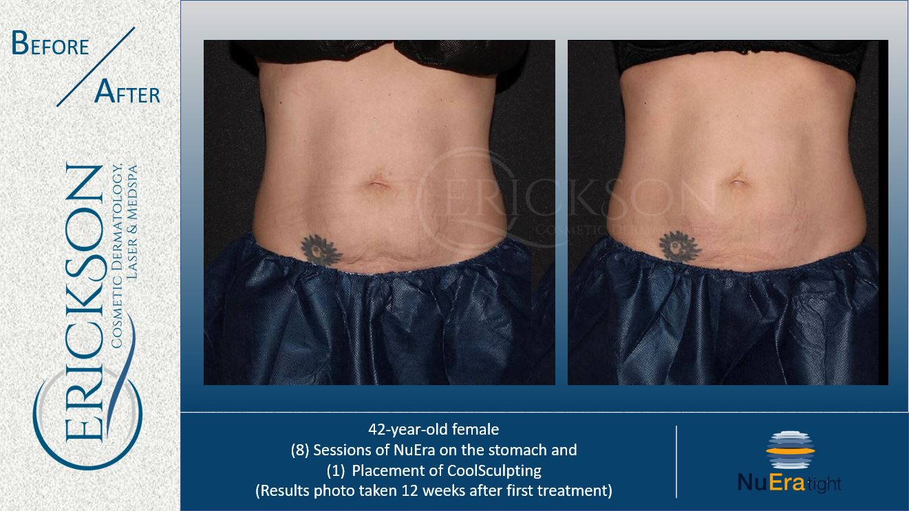 B Coolsculpting BA 6