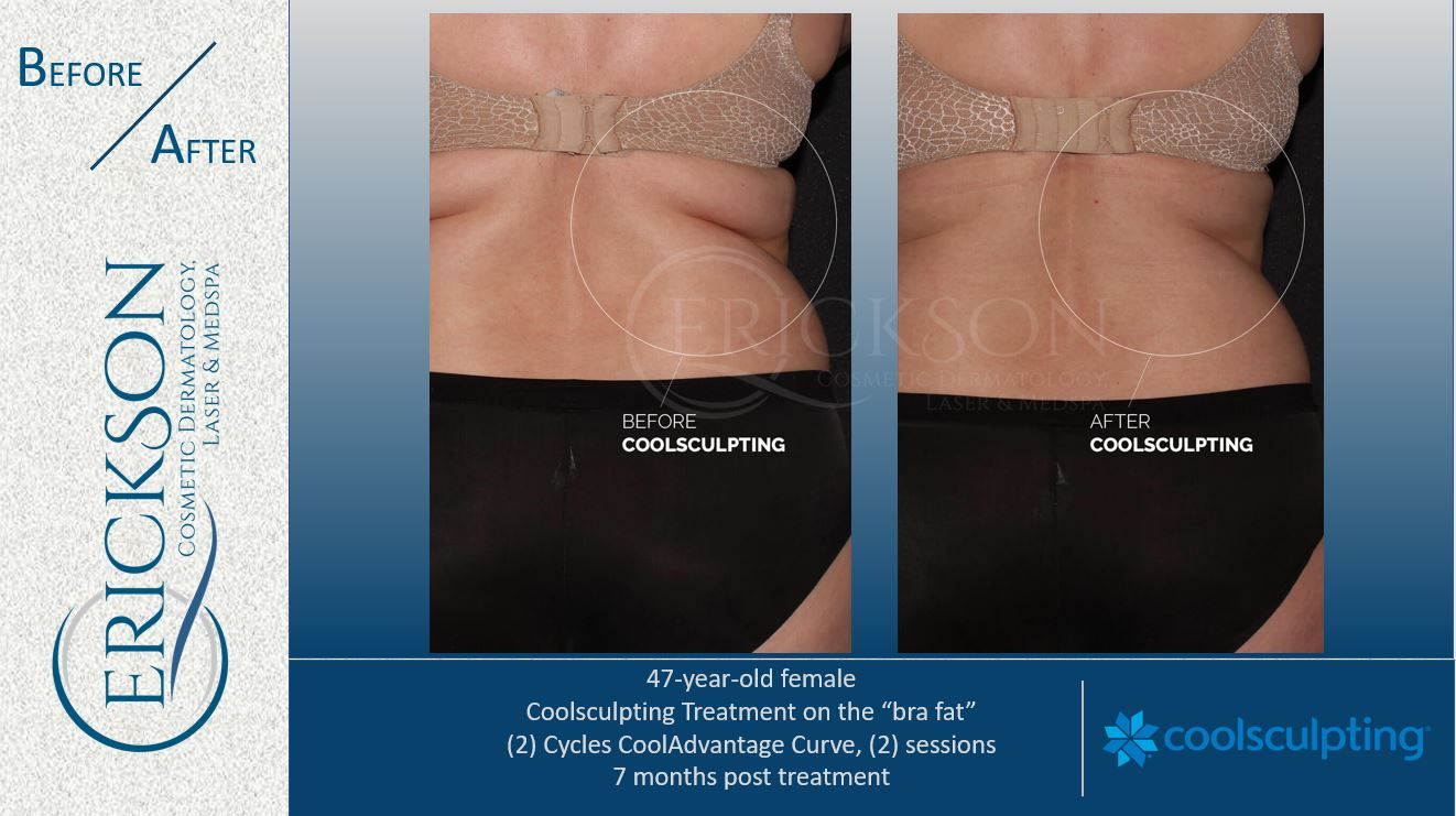 B coolsculpting BA 5
